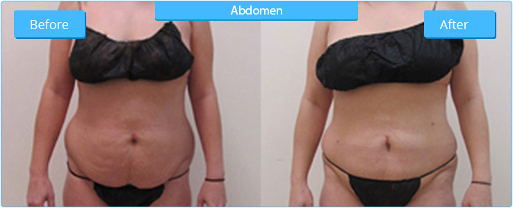 Enhanced Image Med Spa AZ - Liposuction