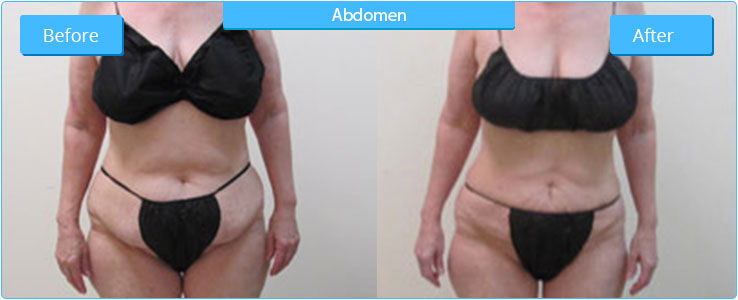 High Definition Liposuction in Glendale