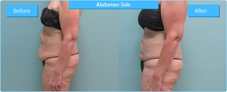 Side View High Definition Liposuction