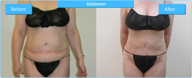 High Definition Liposuction Arizona