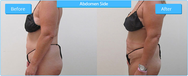 Liposuction Glendale AZ