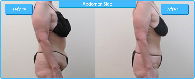 High Definition Liposuction in Arizona