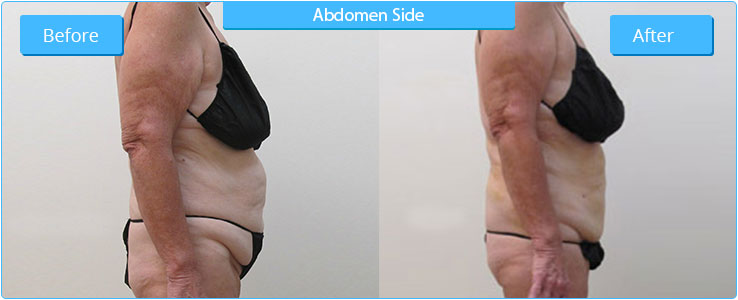 Liposuction Result on Side Abdomen