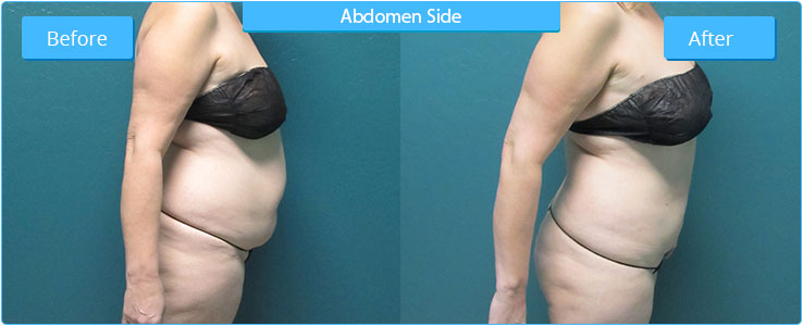 Liposuction by Advanced Image Med Spa