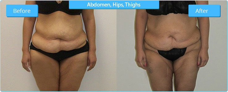 EMS AZ High Definition Liposuction