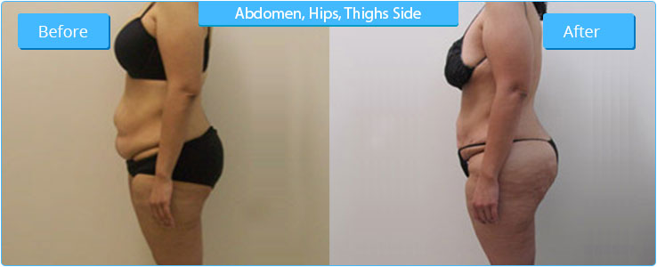 High Definition Liposuction Result on Abdomen Area