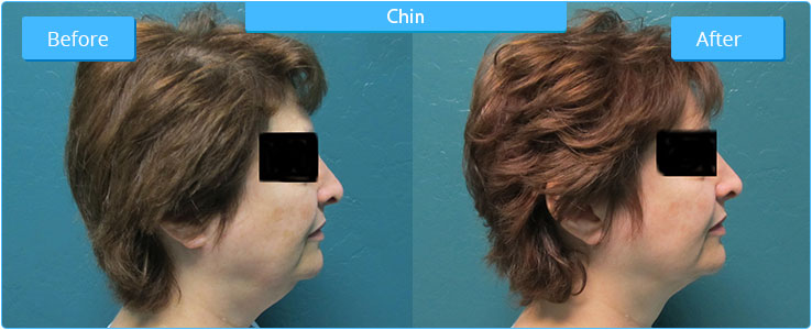 High Definition Liposuction Result on Chin
