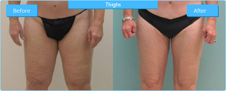 High Definition Liposuction Thighs