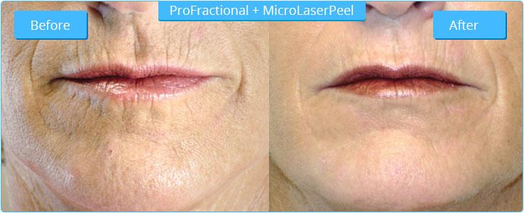 female-lips-ProF-FF-edited