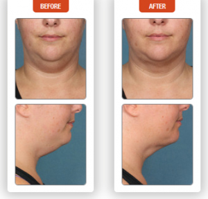 Female Before and After Kybella Treatment