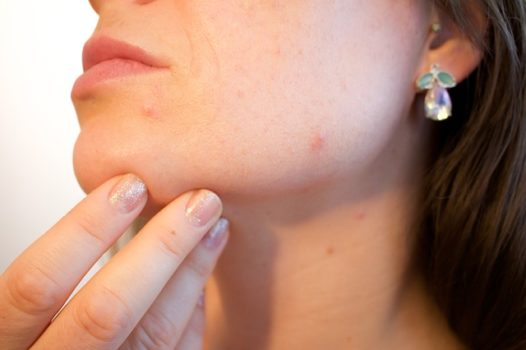 The Lowdown on Acne: Symptoms, Treatment, Prevention