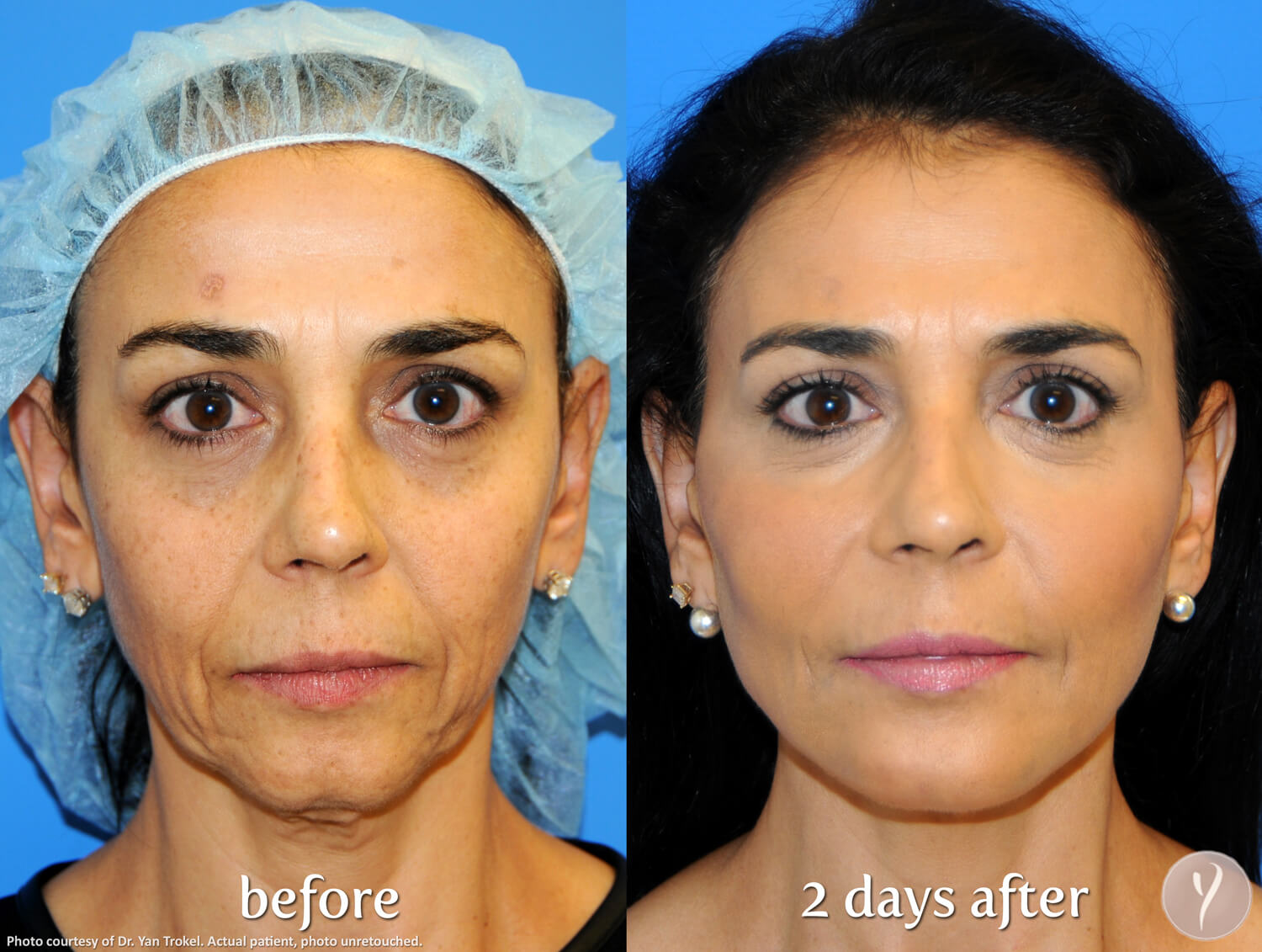 Age Spot Reduction Glendale AZ