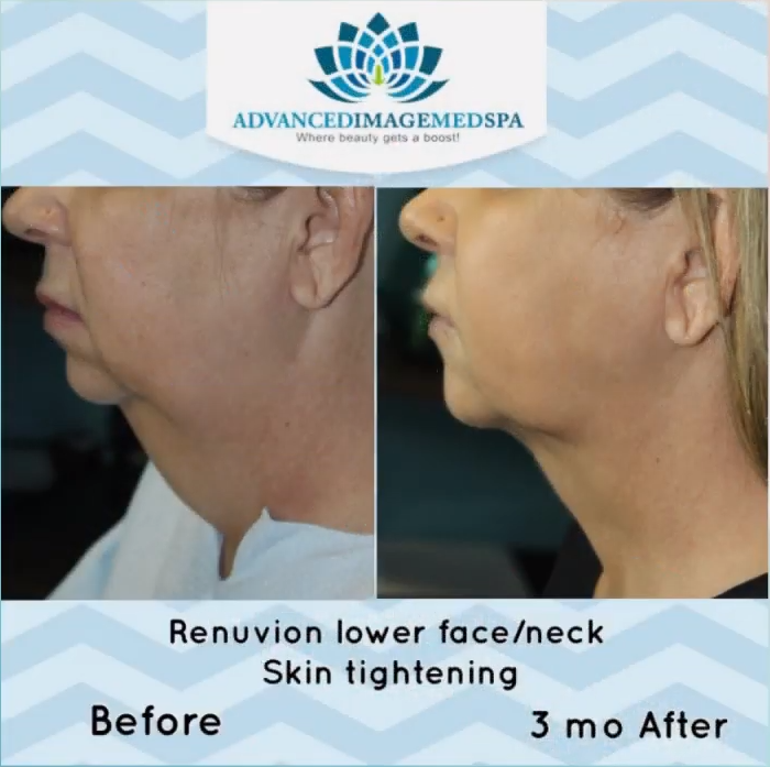 renuvion lower face neck skin tightening