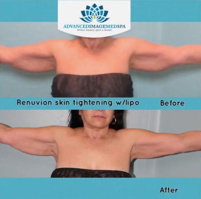 renuvion skin tightening with lipo